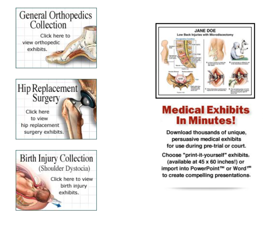 Medical Art for Trial Presentation Sacramento